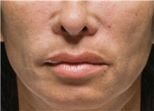 Injectable Fillers After Photo by Stanley Castor, MD; Tampa, FL - Case 39508
