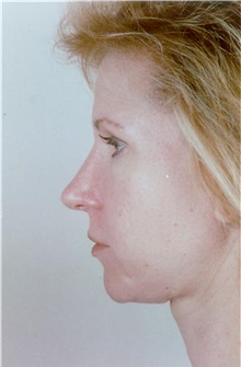 Rhinoplasty After Photo by Stanley Castor, MD; Tampa, FL - Case 39509