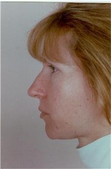 Rhinoplasty Before Photo by Stanley Castor, MD; Tampa, FL - Case 39509
