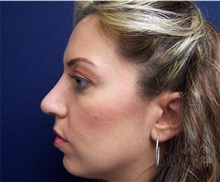 Rhinoplasty After Photo by Stanley Castor, MD; Tampa, FL - Case 39512