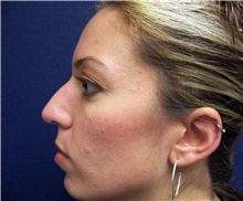 Rhinoplasty Before Photo by Stanley Castor, MD; Tampa, FL - Case 39512