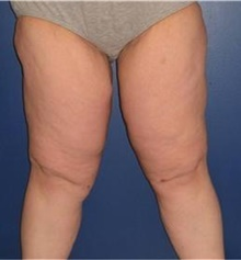 Thigh Lift After Photo by Stanley Castor, MD; Tampa, FL - Case 39513