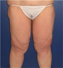 Thigh Lift Before Photo by Stanley Castor, MD; Tampa, FL - Case 39513