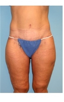 Thigh Lift After Photo by Stanley Castor, MD; Tampa, FL - Case 39514