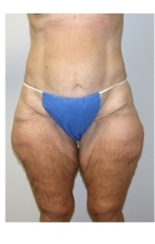 Thigh Lift Before Photo by Stanley Castor, MD; Tampa, FL - Case 39514