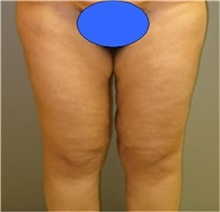 Thigh Lift Before Photo by Stanley Castor, MD; Tampa, FL - Case 39515