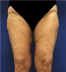 Thigh Lift After Photo by Stanley Castor, MD; Tampa, FL - Case 39516