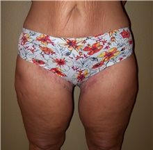 Thigh Lift After Photo by Stanley Castor, MD; Tampa, FL - Case 39517