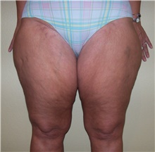 Thigh Lift Before Photo by Stanley Castor, MD; Tampa, FL - Case 39517