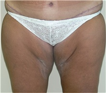 Thigh Lift Before Photo by Stanley Castor, MD; Tampa, FL - Case 39518