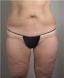 Thigh Lift After Photo by Stanley Castor, MD; Tampa, FL - Case 39519