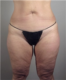 Thigh Lift Before Photo by Stanley Castor, MD; Tampa, FL - Case 39519