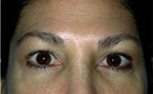 Brow Lift After Photo by Stanley Castor, MD; Tampa, FL - Case 39522