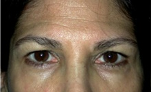 Brow Lift Before Photo by Stanley Castor, MD; Tampa, FL - Case 39522