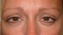 Brow Lift After Photo by Stanley Castor, MD; Tampa, FL - Case 39524