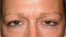 Brow Lift Before Photo by Stanley Castor, MD; Tampa, FL - Case 39524