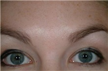 Brow Lift After Photo by Stanley Castor, MD; Tampa, FL - Case 39525