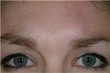 Brow Lift Before Photo by Stanley Castor, MD; Tampa, FL - Case 39525
