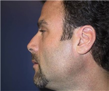 Chin Augmentation After Photo by Stanley Castor, MD; Tampa, FL - Case 39526