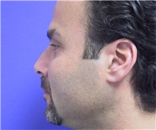 Chin Augmentation Before Photo by Stanley Castor, MD; Tampa, FL - Case 39526