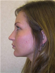 Chin Augmentation After Photo by Stanley Castor, MD; Tampa, FL - Case 39527
