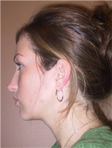 Chin Augmentation Before Photo by Stanley Castor, MD; Tampa, FL - Case 39527