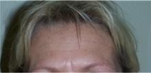 Botulinum Toxin After Photo by Stanley Castor, MD; Tampa, FL - Case 39530