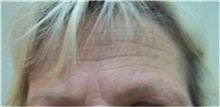 Botulinum Toxin Before Photo by Stanley Castor, MD; Tampa, FL - Case 39530