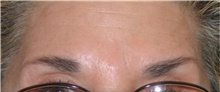 Botulinum Toxin After Photo by Stanley Castor, MD; Tampa, FL - Case 39531