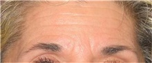 Botulinum Toxin Before Photo by Stanley Castor, MD; Tampa, FL - Case 39531