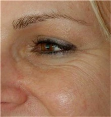 Botulinum Toxin Before Photo by Stanley Castor, MD; Tampa, FL - Case 39532
