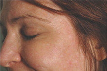 Botulinum Toxin After Photo by Stanley Castor, MD; Tampa, FL - Case 39533