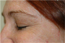 Botulinum Toxin Before Photo by Stanley Castor, MD; Tampa, FL - Case 39533