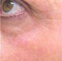 Laser Skin Resurfacing After Photo by Stanley Castor, MD; Tampa, FL - Case 39539