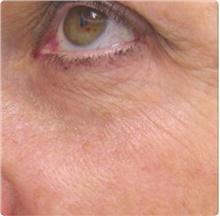 Laser Skin Resurfacing Before Photo by Stanley Castor, MD; Tampa, FL - Case 39539