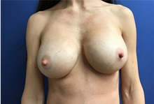 Breast Implant Removal After Photo by Daniel Sherick, MD; Ann Arbor, MI - Case 35705