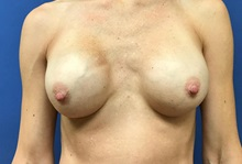 Breast Implant Removal Before Photo by Daniel Sherick, MD; Ann Arbor, MI - Case 35705