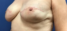 Breast Reconstruction After Photo by Daniel Sherick, MD; Ann Arbor, MI - Case 35706