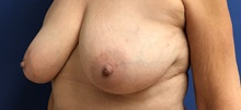 Breast Reconstruction Before Photo by Daniel Sherick, MD; Ann Arbor, MI - Case 35706