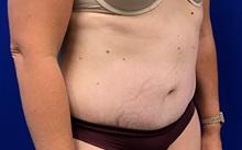 Tummy Tuck After Photo by Daniel Sherick, MD; Ann Arbor, MI - Case 35720