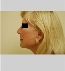 Facelift After Photo by Thomas Zewert, MD, PhD; Monterey, CA - Case 36672
