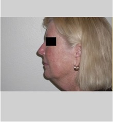 Facelift Before Photo by Thomas Zewert, MD, PhD; Monterey, CA - Case 36672