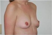 Breast Augmentation Before Photo by Thomas Zewert, MD, PhD; Monterey, CA - Case 37243