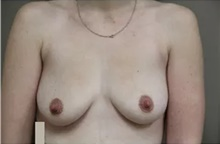 Breast Augmentation Before Photo by Thomas Zewert, MD, PhD; Monterey, CA - Case 42002
