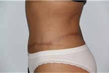 Body Lift After Photo by Thomas Zewert, MD, PhD; Monterey, CA - Case 42568