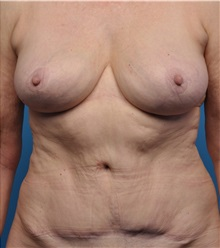 Breast Implant Removal After Photo by Lisa Cassileth, MD; Beverly Hills, CA - Case 34142