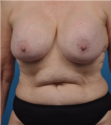 Breast Implant Removal Before Photo by Lisa Cassileth, MD; Beverly Hills, CA - Case 34142
