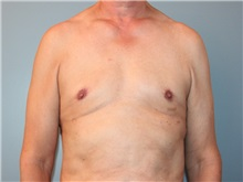 Male Breast Reduction After Photo by Larry Nichter, MD; Newport Beach, CA - Case 29836