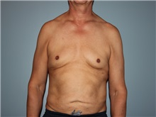 Male Breast Reduction Before Photo by Larry Nichter, MD; Newport Beach, CA - Case 29836