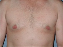 Male Breast Reduction After Photo by Larry Nichter, MD; Newport Beach, CA - Case 29852